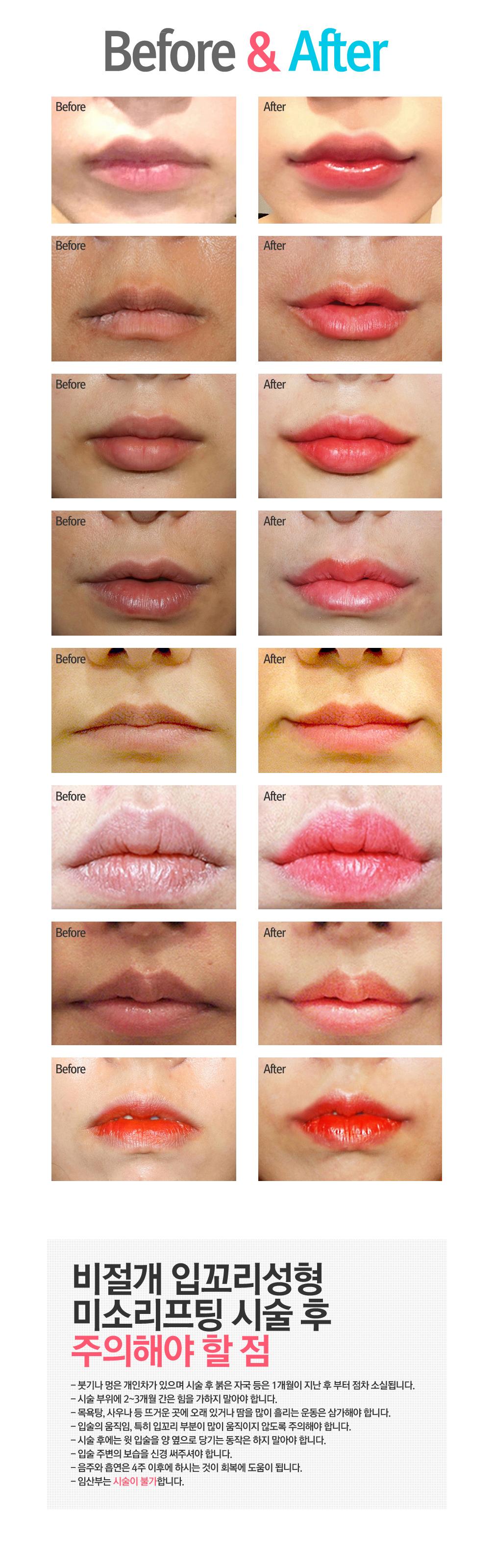 mitop lip p4.jpg